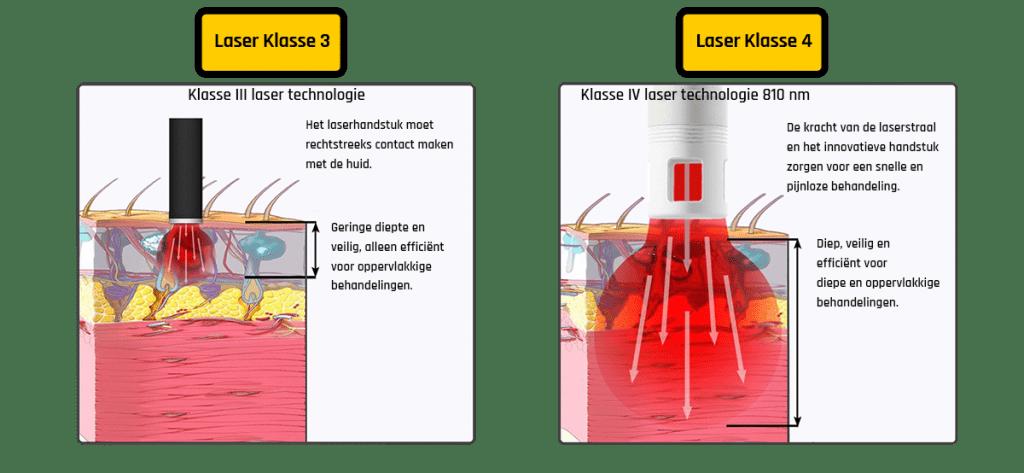 Laser klasse HPLT